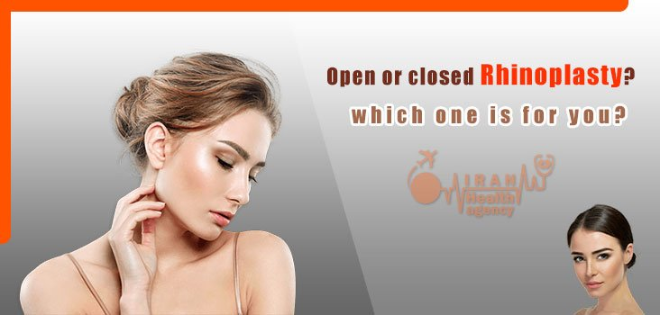 Open or closed Rhinoplasty