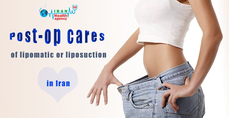 Post-op cares of lipomatic or liposuction in Iran