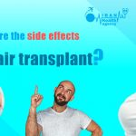 What are the side effects of hair transplant