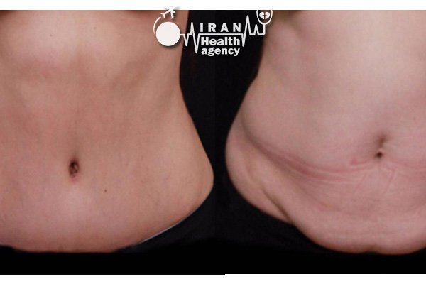 before and after photos of liposuction in Iran 2