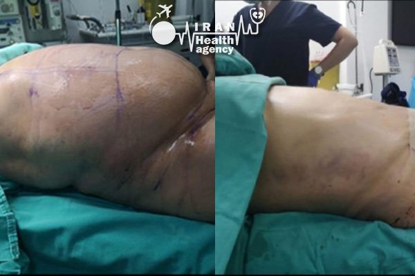 before and after liposuction in Iran 2