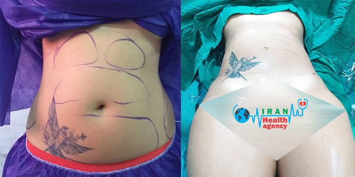 liposuction in Iran before and after