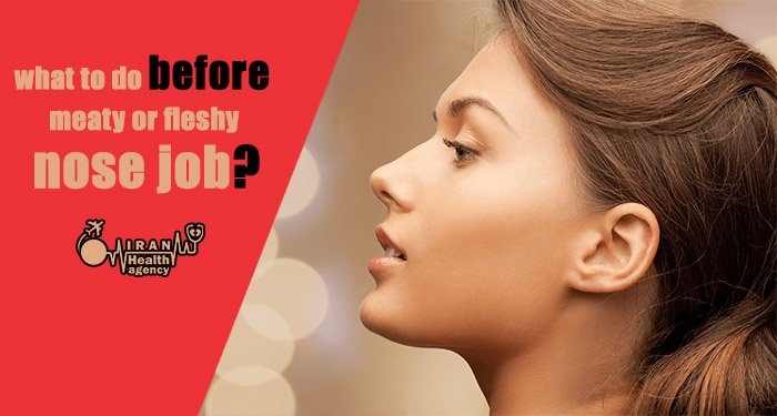 what to do after fleshy nose job