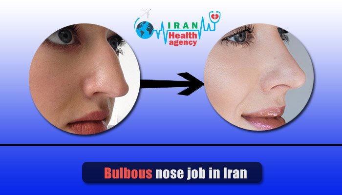 Bulbous nose job in Iran