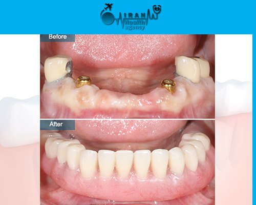 Dental Implants in iran before and after 1