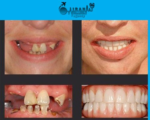Dental Implants in iran before and after 3