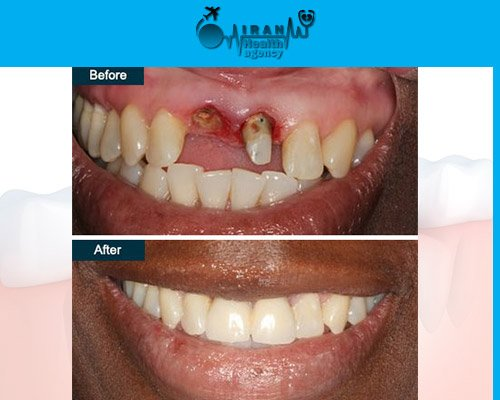 Dental Implants in iran before and after 4