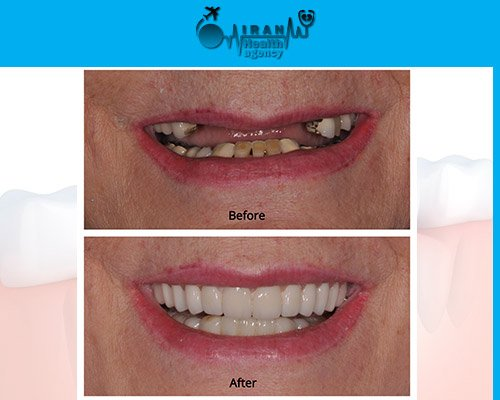 Dental Implants in iran before and after 5