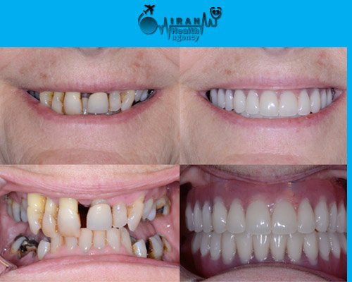 Dental Implants in iran before and after 7