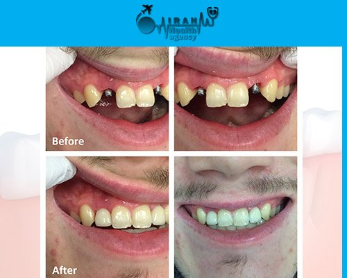 Dental Implants in iran before and after 8