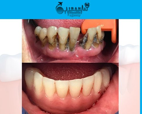 Dental Implants in iran before and after 9