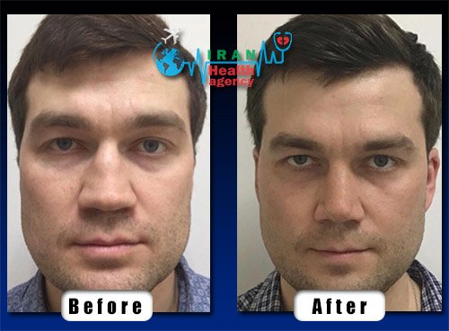 before after male rhinoplasty