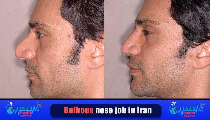 bulbous male nose job