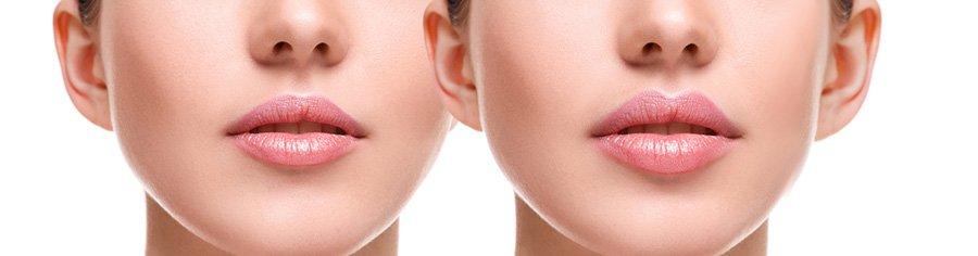 lip lift in Iran