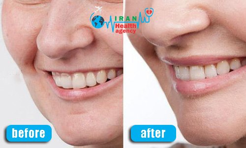 lip lift in before after