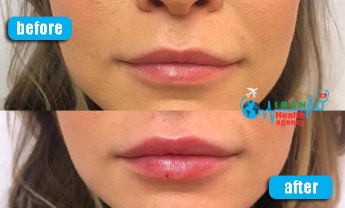 lip lift in before and after