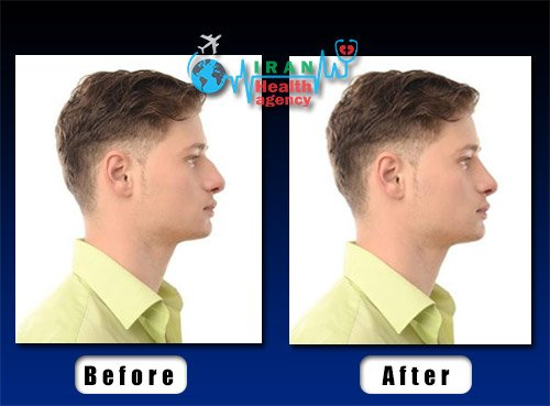 male rhinoplasty before and after photo