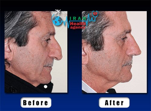 old man rhinoplasty before after