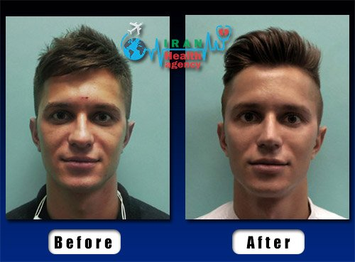 teenage boy rhinoplasty before and after