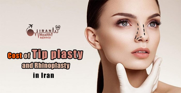 Cost of tip plasty in Iran