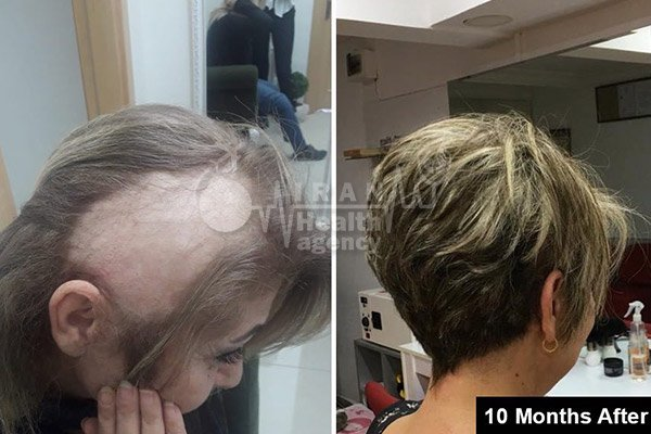 hair transplant in Iran before after 10