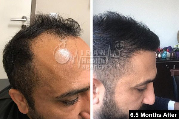 hair transplant in Iran before after 12