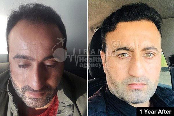 hair transplant in Iran before after 2