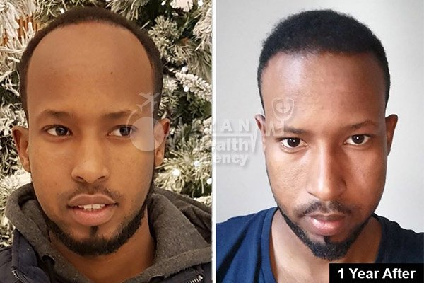 hair transplant in Iran before after 3