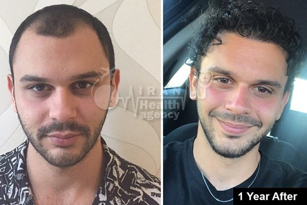 hair transplant in Iran before after 4