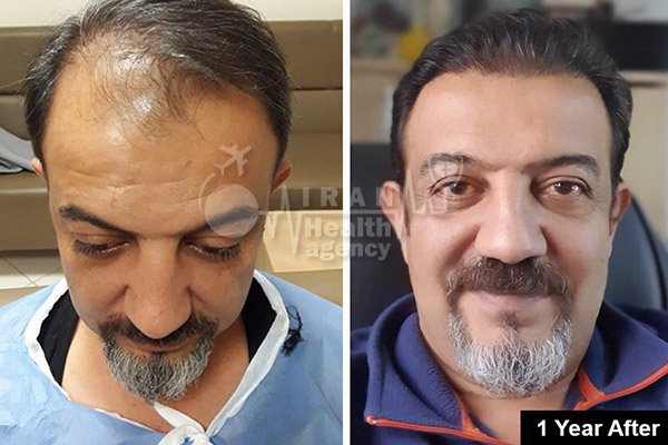 hair transplant in Iran before after 8