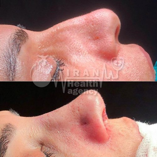 rhinoplasty in Iran before and after