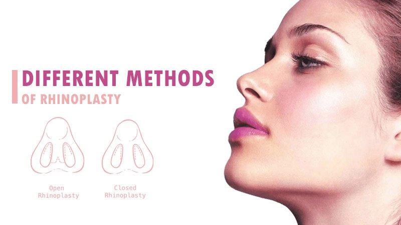 different methods of rhinoplasty