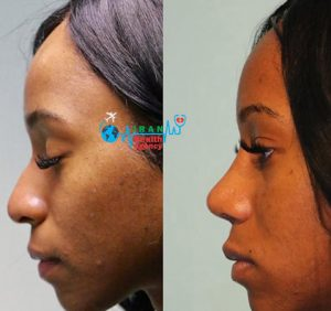 before and after of rhinoplasty in shiraz