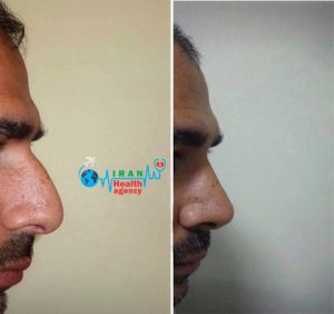 before and after of rhinoplasty in shiraz Iran