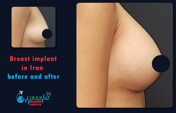 Breast implant in Iran