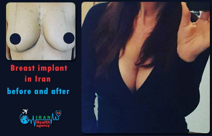 Breast implant in Iran before after
