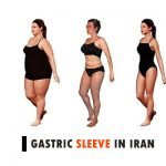 Gastric sleeve in Iran