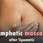 Lymphatic massage after lipomatic in Iran