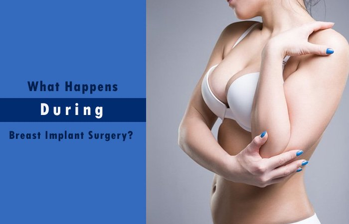 What Happens During Breast Implant Surgery