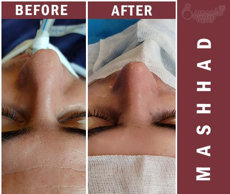 before and after rhinoplasty Mashhad