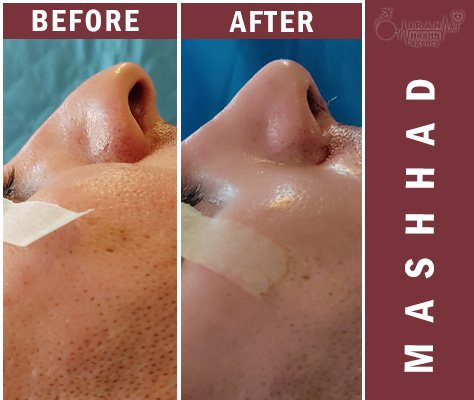 rhinoplasty in Mashhad before and after