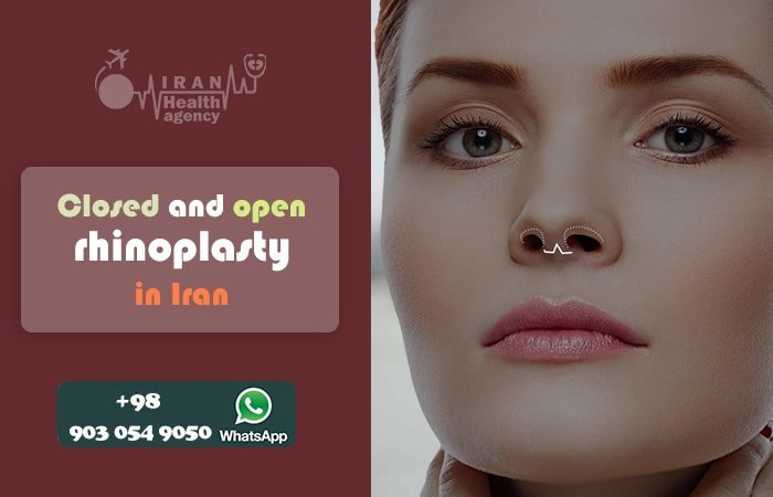 Closed and open rhinoplasty