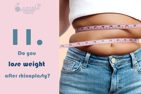 Do you lose weight after rhinoplasty