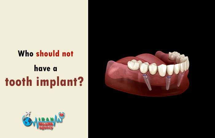 Who should not have a tooth implant