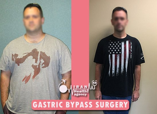 gastric bypass surgery before and after 2