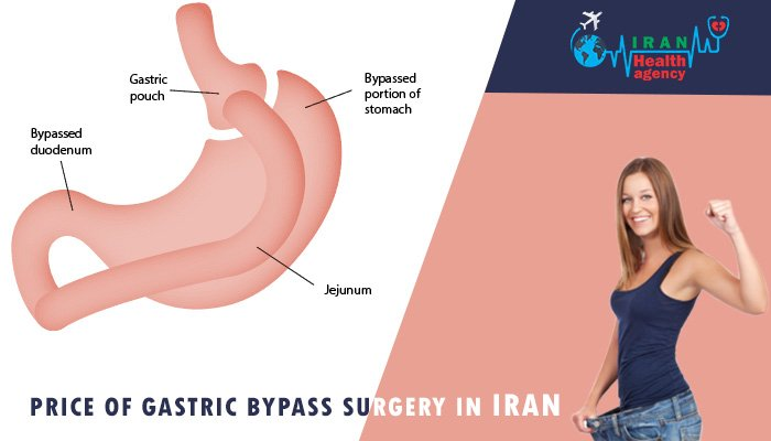 price of gastric bypass surgery in Iran