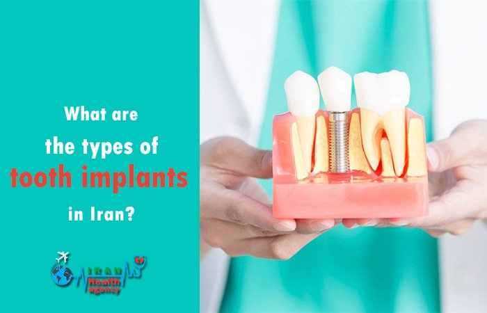 types of tooth implants in Iran