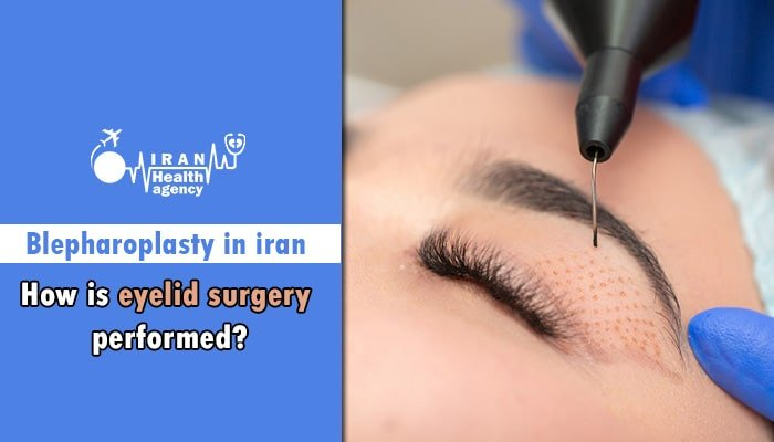 How is eyelid surgery in Iran performed