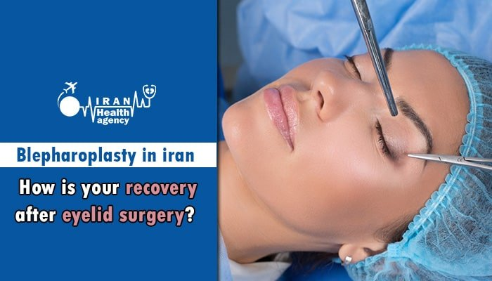 How is your recovery after eyelid surgery in Iran
