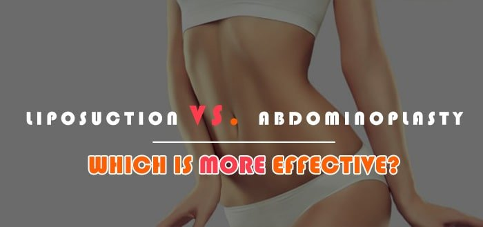 Liposuction vs abdominoplasty